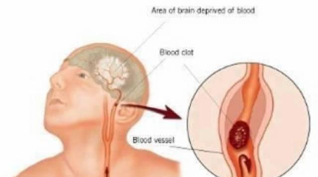 Shenjat paralajmëruese të goditjes në tru